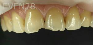 Vu-Le-Dental-Bonding-before-2