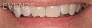 Vu-Le-Dental-Bonding-before-3
