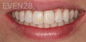 Vu-Le-Dental-Bonding-before-4