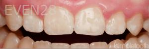 Vu-Le-Laser-Gum-Reduction-Surgery-after-1