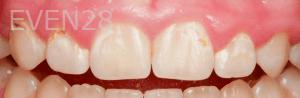 Vu-Le-Laser-Gum-Reduction-Surgery-before-1