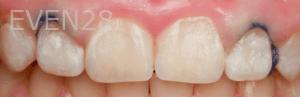 Vu-Le-Laser-Gum-Reduction-Surgery-before-1b