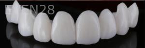 Vu-Le-Porcelain-Veneers-before-1b