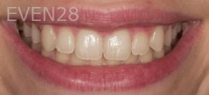 Vu-Le-Teeth-Whitening-Before-1