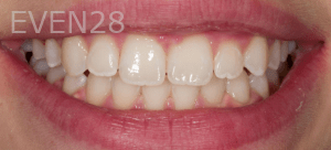 Vu-Le-Teeth-Whitening-after-1