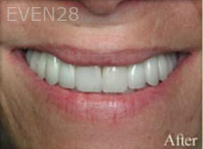 William-Poe-Dental-Crowns-after-1