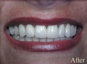 William-Poe-Dental-Crowns-after-2