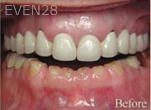 William-Poe-Dental-Crowns-before-1