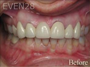 William-Poe-Dental-Crowns-before-2