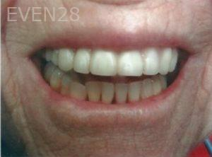 William-Poe-Dentures-after-1