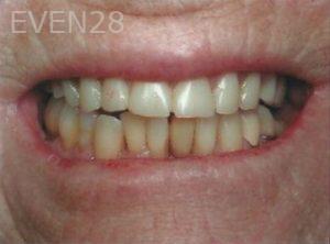 William-Poe-Dentures-before-1