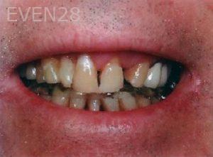William-Poe-Smile-Makeover-before-1b