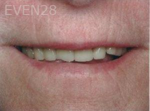 William-Poe-Smile-Makeover-before-2