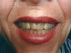 William-Poe-Smile-Makeover-before-3b
