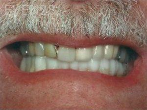 William-Poe-Smile-Makeover-before-6