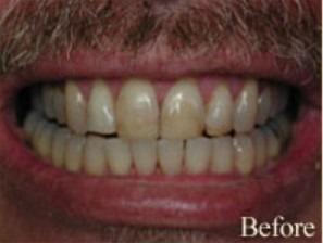 William-Poe-Smile-Makeover-before-7