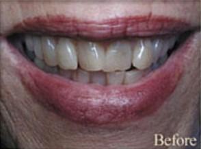 William-Poe-Smile-Makeover-before-9