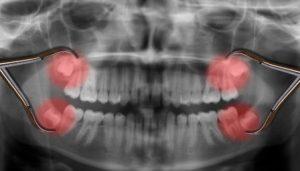 Wisdom-teeth-Four-Sedation