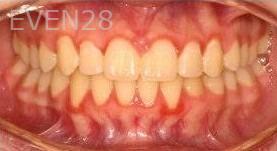 Abbas-Eftekhari-Orthodontic-Braces-after-1b