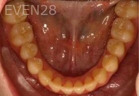 Abbas-Eftekhari-Orthodontic-Braces-after-1d