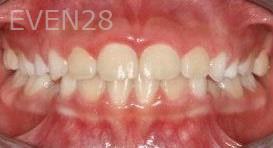 Abbas-Eftekhari-Orthodontic-Braces-after-2b