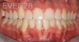 Abbas-Eftekhari-Orthodontic-Braces-after-3b