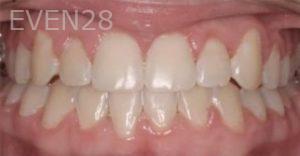 Abbas-Eftekhari-Orthodontic-Braces-after-4b