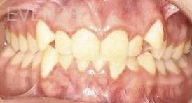 Abbas-Eftekhari-Orthodontic-Braces-before-1b