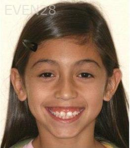 Abbas-Eftekhari-Orthodontic-Braces-before-2