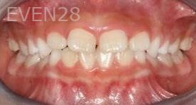 Abbas-Eftekhari-Orthodontic-Braces-before-2b