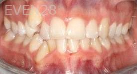 Abbas-Eftekhari-Orthodontic-Braces-before-3b