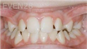 Abbas-Eftekhari-Orthodontic-Braces-before-4b