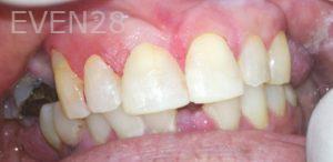 Afsana-Danishwar-Dental-Bonding-after-1