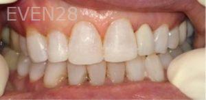 Afsana-Danishwar-Dental-Bonding-after-2