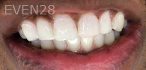 Afsana-Danishwar-Dental-Bonding-after-3