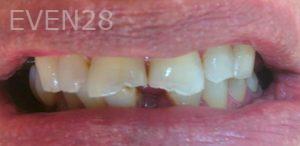 Afsana-Danishwar-Dental-Bonding-before-1