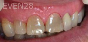 Afsana-Danishwar-Dental-Bonding-before-2