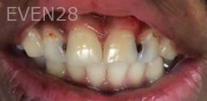 Afsana-Danishwar-Dental-Bonding-before-3