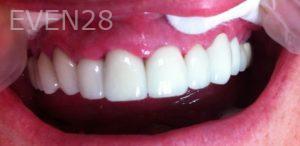 Afsana-Danishwar-Dental-Crowns-after-1