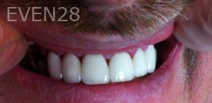 Afsana-Danishwar-Dental-Crowns-after-2