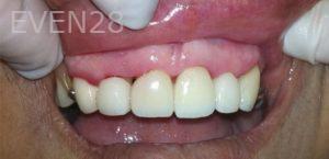 Afsana-Danishwar-Dental-Crowns-after-3