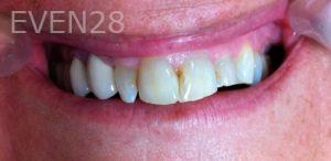 Afsana-Danishwar-Dental-Crowns-before-1