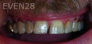 Afsana-Danishwar-Dental-Crowns-before-2