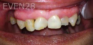Afsana-Danishwar-Dental-Crowns-before-3