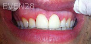 Afsana-Danishwar-Smile-Makeover-after-2