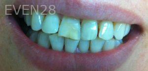 Afsana-Danishwar-Smile-Makeover-before-1