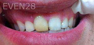 Afsana-Danishwar-Smile-Makeover-before-2