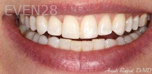Anjali-Rajpal-Dental-Bonding-after-1
