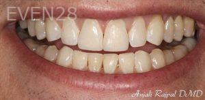 Anjali-Rajpal-Dental-Bonding-after-2