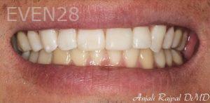 Anjali-Rajpal-Dental-Bonding-after-3